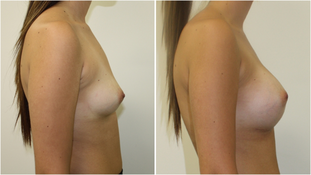 18 yo female, dual-plane 2 submuscular breast augmentation, 350cc textured round breast implants, A cup -> D cup.