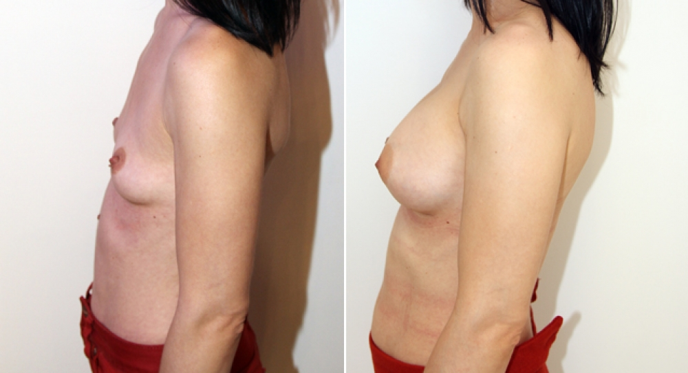 Mid 30s, breast augmentation performed using 295g anatomical (teardrop) implants with dual plane 2 placement.