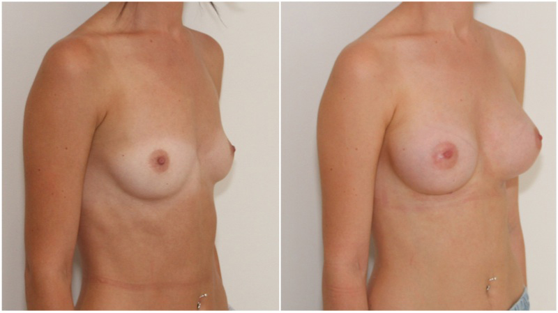 20s, asymmetrical, 255g anatomical right, 295g anatomical left, cohesive gel, submuscular augmentation.