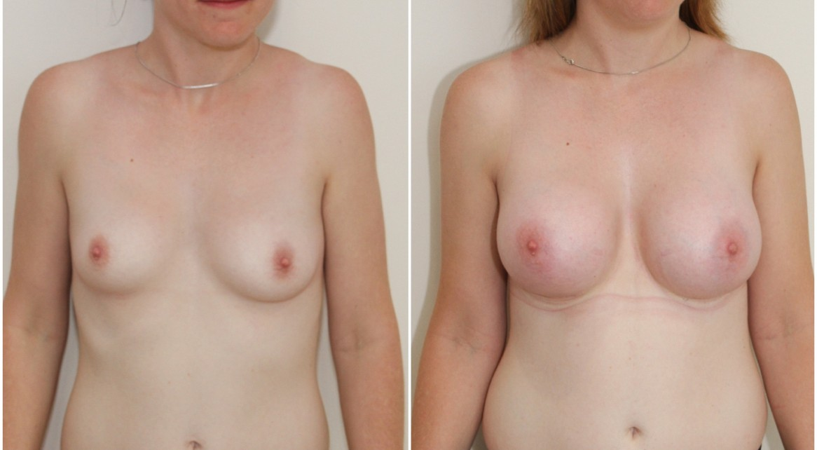Volume and breast shape restored with 390g high profile implants, subfascial placement.
