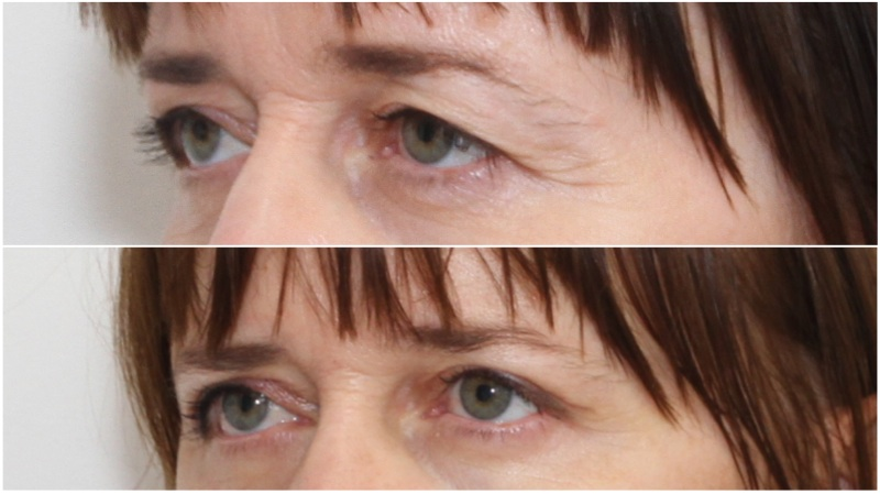 Upper Eyelid Rejuvenation to remove excess skin and create youthful upper eyelid crease.