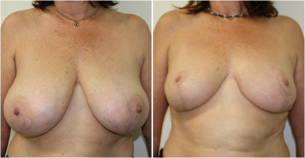 57yo female, vertical short-scar breast reduction and lift with nipple repositioning and reshaping. Approximately 550g of tissue removed from each breast, E -> C/D cup.