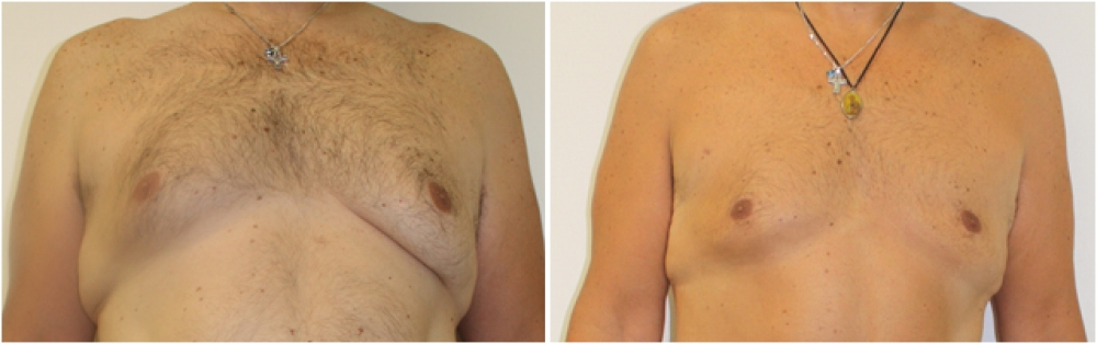 Removal of excessive male breast tissue (gynaecomastia) with liposuction only.