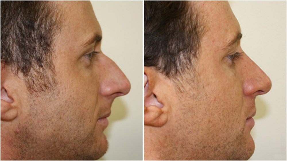 28yo M, requested a change in nasal profile and an improvement in nasal breathing, underwent an open nose reshaping operation (open rhinoplasty).