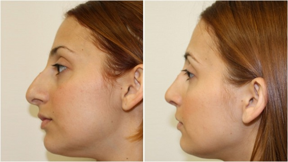 Mid 20s, open rhinoplasty procedure used to improve nasal width, profile and tip.