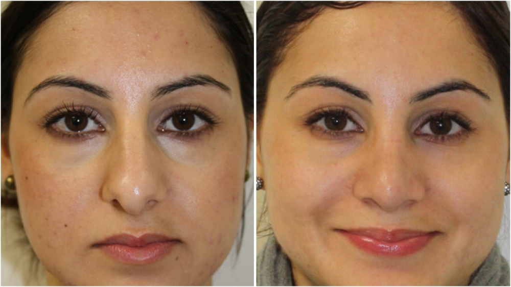 23yoF, nasal profile dominating over other facial features, droopy tip, dorsal hump, all corrected with an open rhinoplasty procedure. The nose has been reshaped to appear more balanced and feminine on the patient's face.