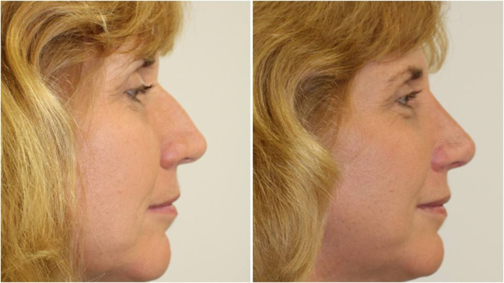 Late 40s, open rhinoplasty procedure used to improve nasal width, profile and tip.