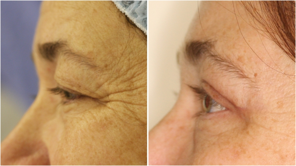 55 year old lady, requesting upper eyelid reduction surgery to restore more youthful looking, open eyes. A concomitant direct brow lift has also been done in this case.