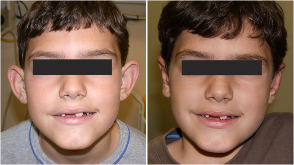 6yo M, significantly protruding ears with lack of fold definition. Correction with ear reshaping surgery (otoplasty) with all incisions hidden behind the ears.
