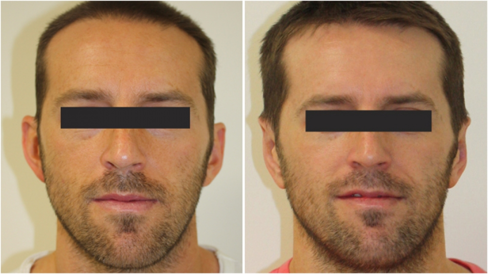 30s, M, had long been bothered by the appearance of his ears. Otoplasty surgery was performed to correct his moderately protruding ears.