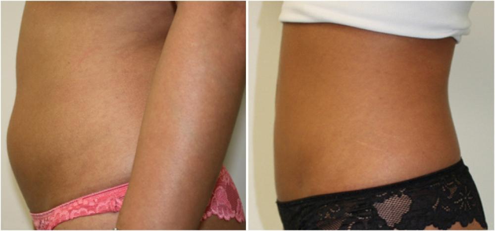 27 yo female, underwent liposuction to the tummy and flank area to give a more slender appearance.