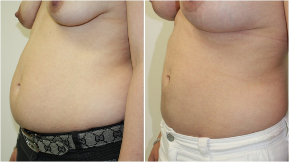 29yo female, liposuction to tummy and flanks.