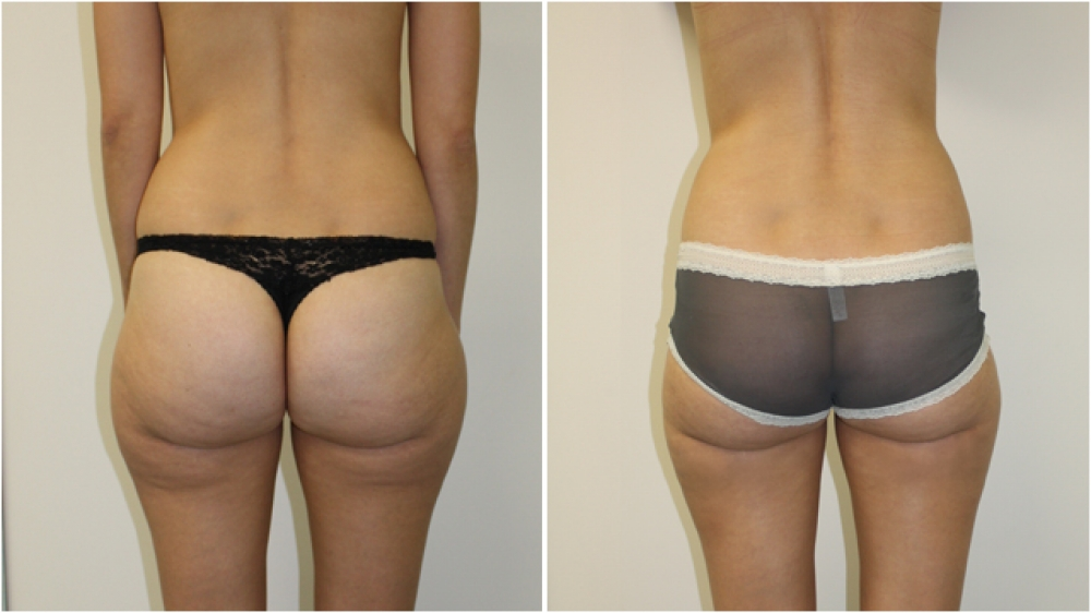 This 30 year old lady underwent liposuction to her outer thighs, buttocks and flanks to achieve a more streamlined appearance.