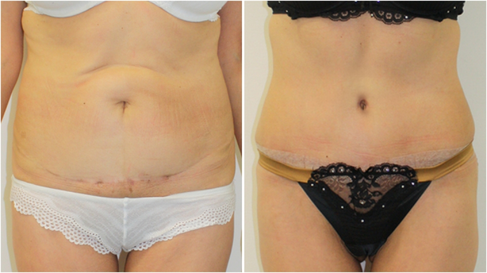 63yo female, requiring major contour restoration, belly button reshaping, as well as large amount of redundant skin and fat removal. An extended tummy tuck operation was performed to acMid 50s, excessive loose skin and previous scars from multiple abdomin