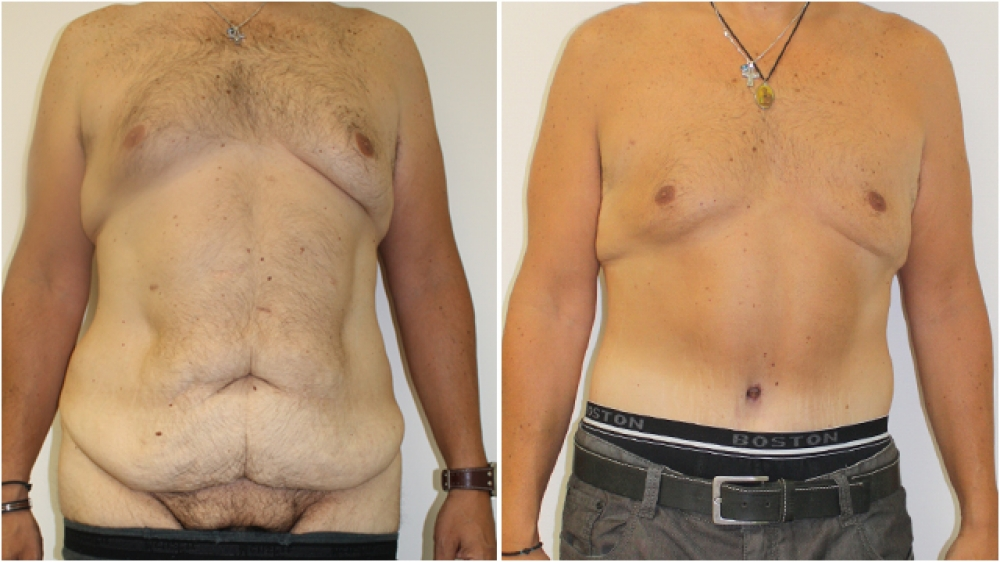 40s male, an extended tummy tuck has been performed here to recontour the entire lower torso. This procedure is very effective in men who have had a large amount of weight loss and are subsequently left with large amounts of excess skin.
