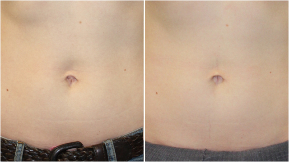 32 year old, belly button reshaping surgery was performed to give a more attractive navel region following pregnancy.