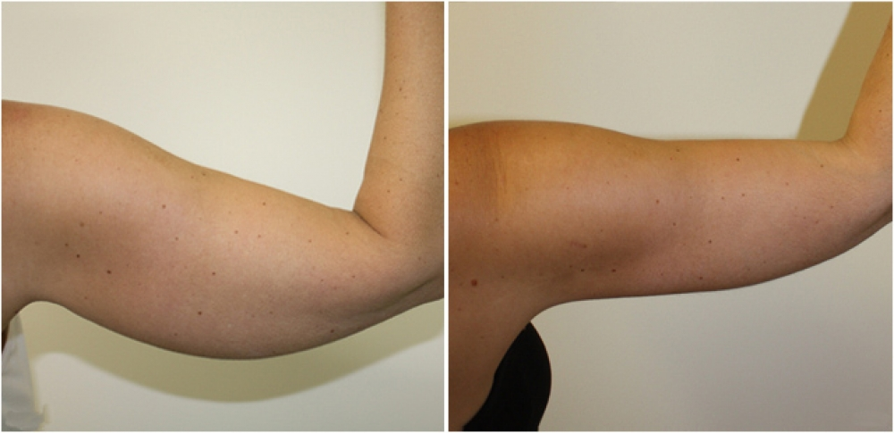 40 year old woman, post weight loss, underwent brachioplasty procedure to give the arms a more slim and youthful appearance.