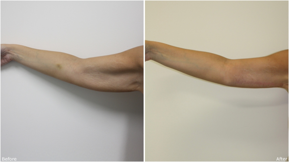 33 yo female, weight loss, concerned with 'bat wing' like appearance of her upper arms. Underwent surgical brachioplasty (arm lift) and liposuction to correct the problem.