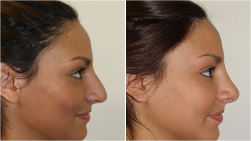 Early 20s, open rhinoseptoplasty used to refine and feminise the nasal profile and tip with a gentle slope.