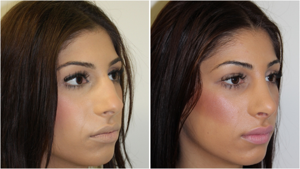 Early 20s, open rhinoplasty used to refine and feminise the nasal profile with a gentle slope.