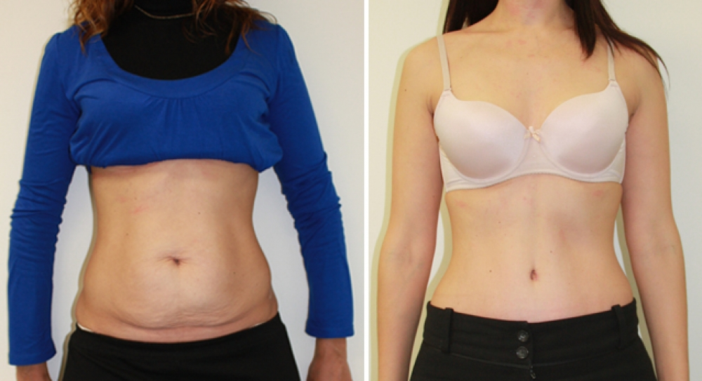 Mid 30s, 3 children, full tummy tuck procedure performed by Dr Miroshnik to remove excess fat and skin, while providing better abdominal definition.