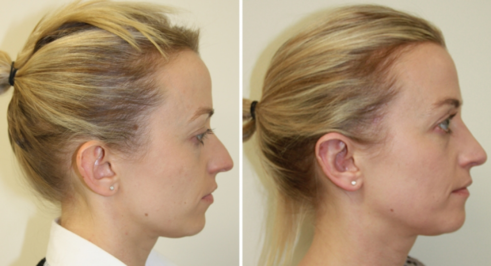 30s, F, otoplasty performed to correct protruding ears.