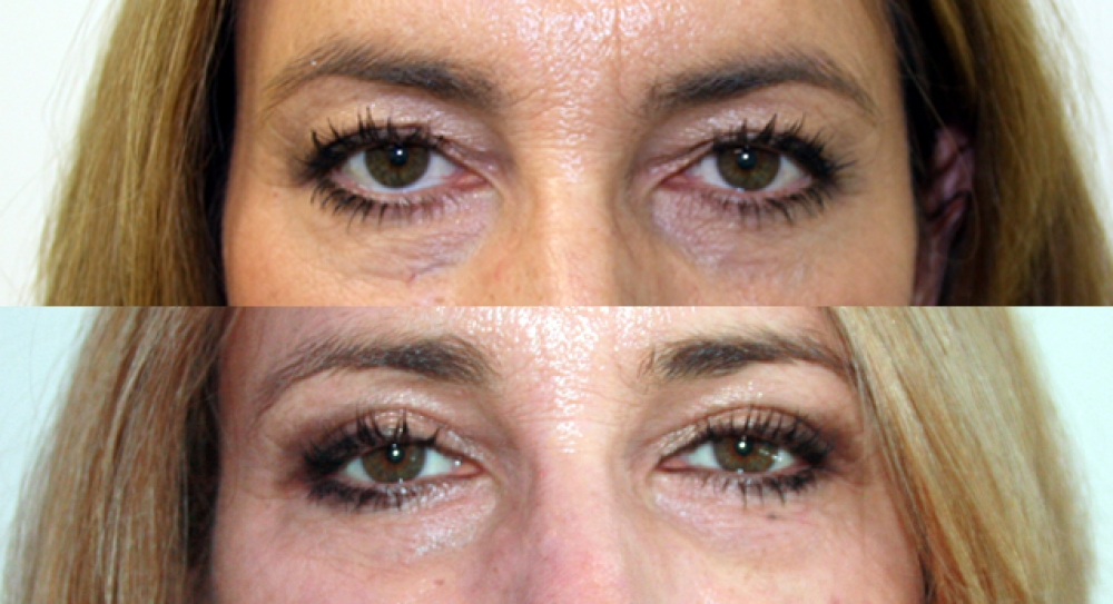 Late 50s, upper lid reduction performed to restore a more youthful and open eyed look.