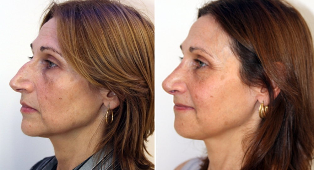 Late 40s, open rhinoplasty procedure performed to remove hump and improve nasal profile.