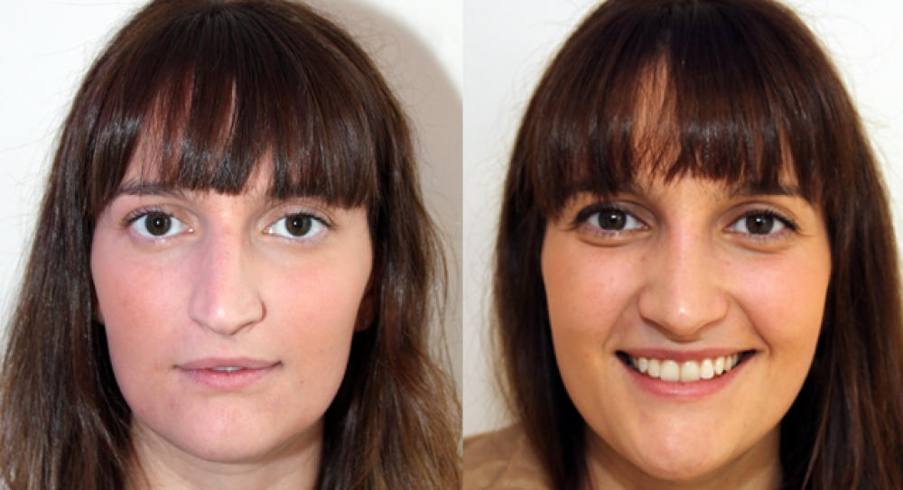 25yo, open rhinoplasty procedure performed to improve nasal shape and symmetry.