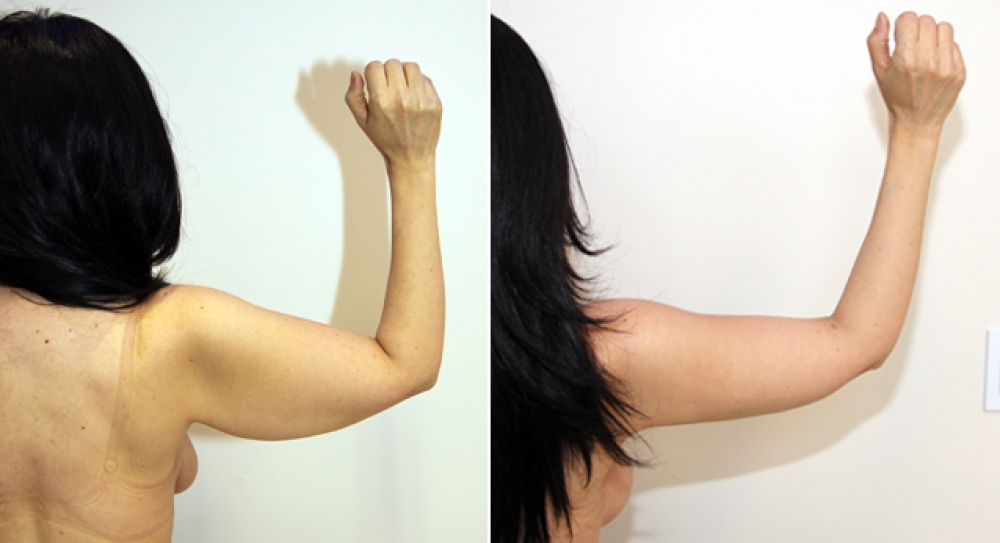 42 yo, bilateral brachioplasty performed to restore a slim and youthful appearance to arms.