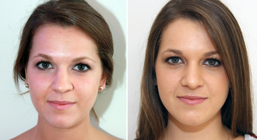 Early 20s, open rhinoseptoplasty performed to improve nasal shape and symmetry.