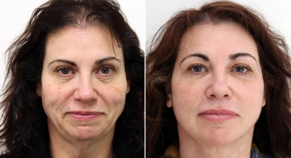 50s, face/neck lift, lower eyelid reduction as well as skin resurfacing.
