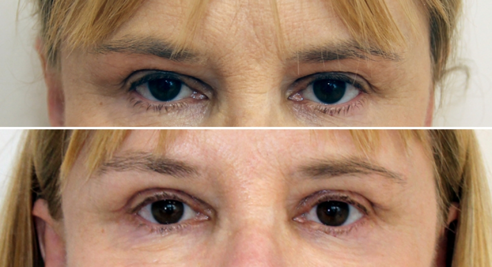 Upper blepharoplasty, eyelid reshaping with excess skin removal and creation of crisp upper eyelid fold