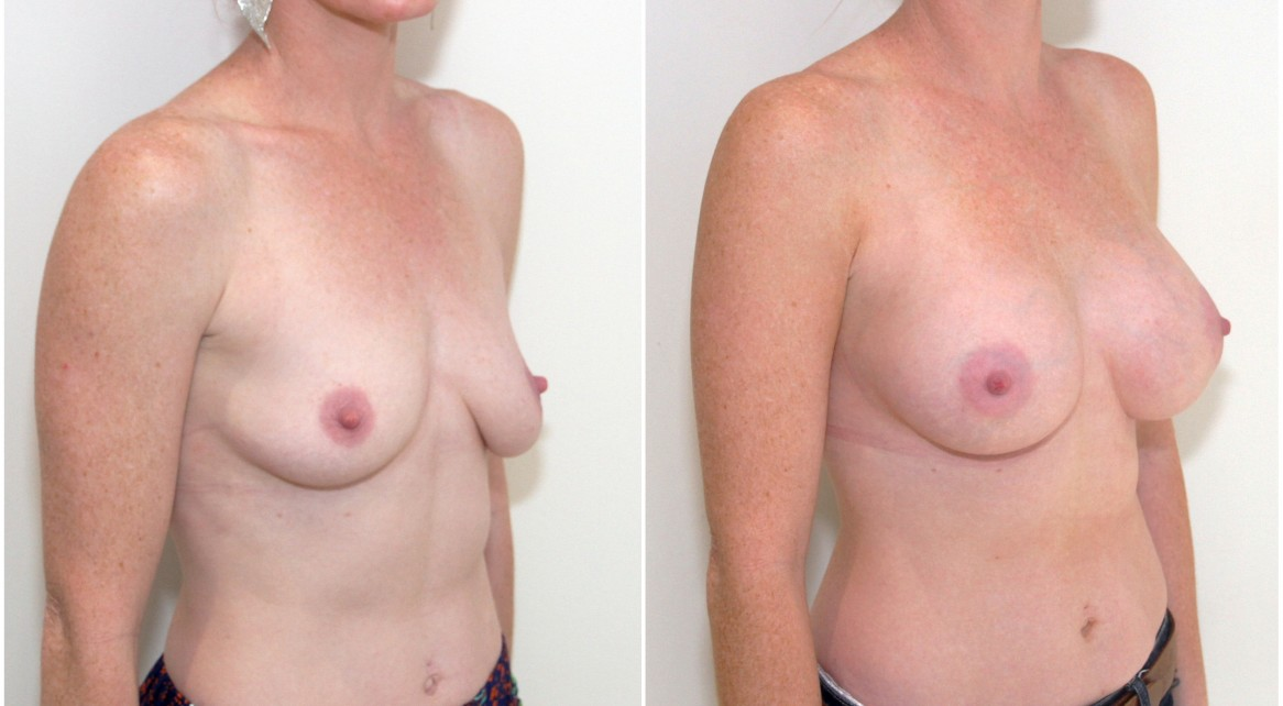 Breast droop and asymmetry corrected with a 275g mod profile breast augmentation coupled with a breast lift on the left side only to match.