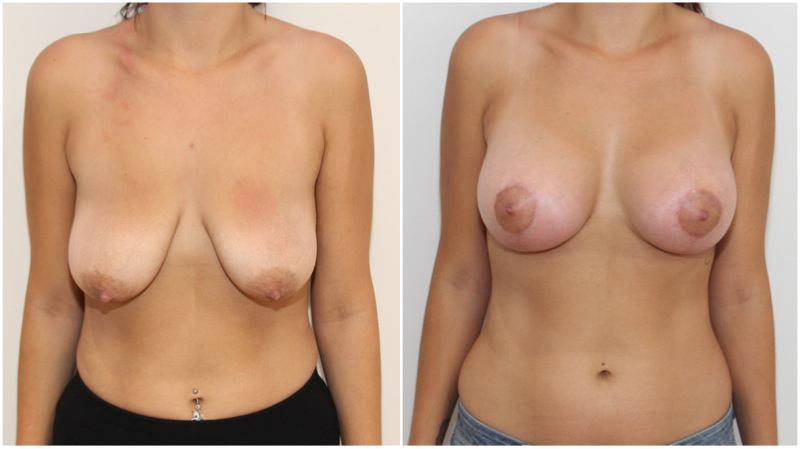Breast lift/reshape + simultaneous augmentation with 330cc Round Style Implants