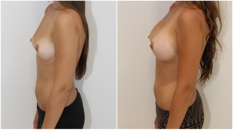 20s, asymmetry, augmentation with 350g round right, 400g left.