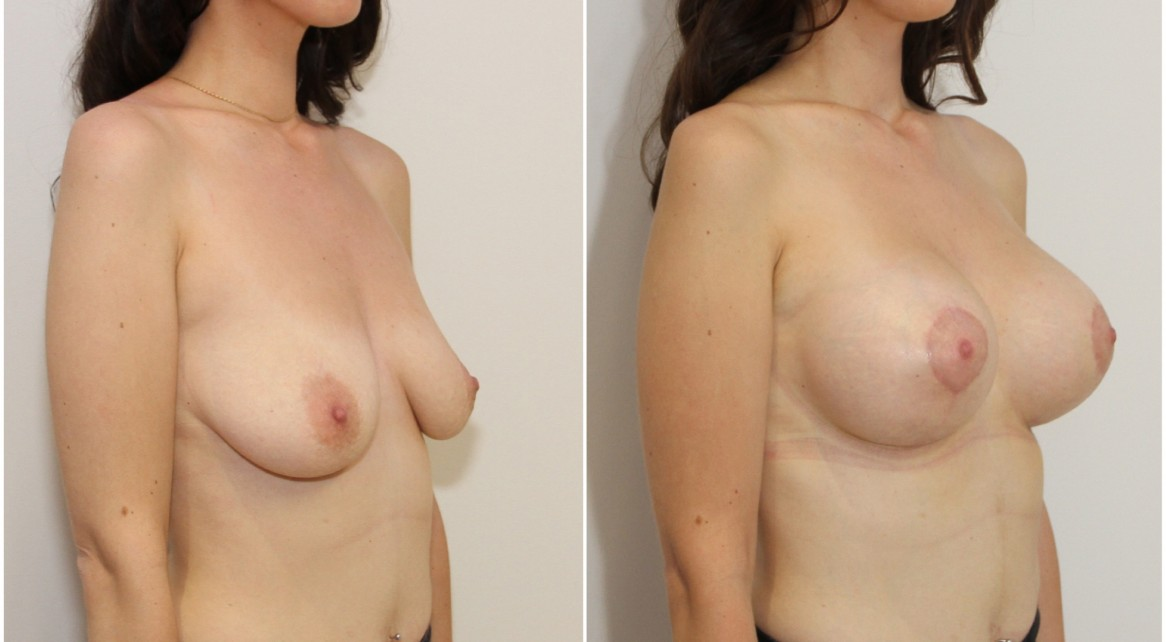 Breast lift + implants with 420g, high profile, round, cohesive gel implants.