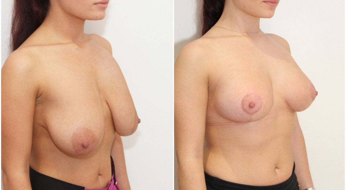 20s, breast reduction of approx. 220g each side, lift and reshape.