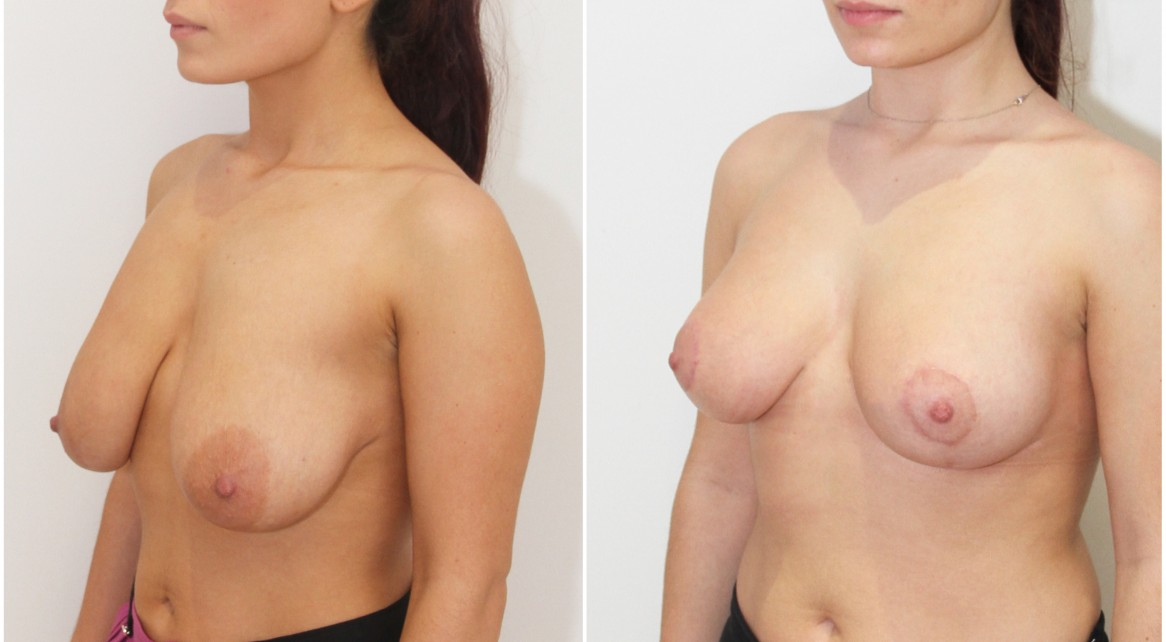 20s, breast lift and reshaping procedure by Dr Miroshnik without the use of implants.