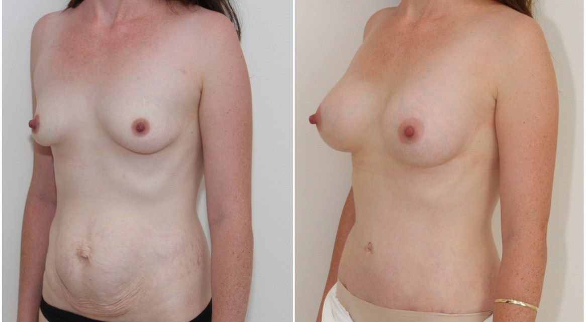 Breast augmentation and shaping with 250g breast anatomics, full tummy tuck to sculpt the abdomen.