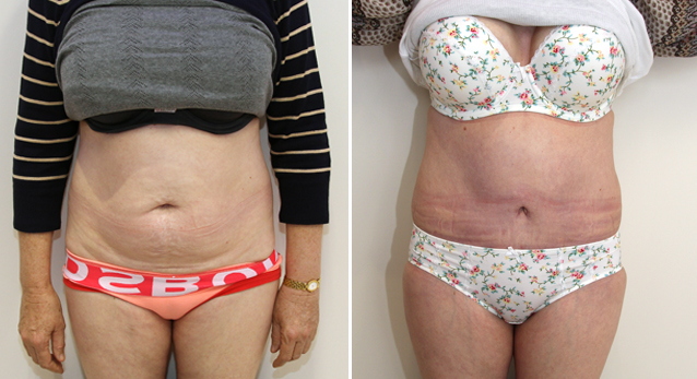 Full tummy tuck to correct abdominal wall laxity and muscle weakness