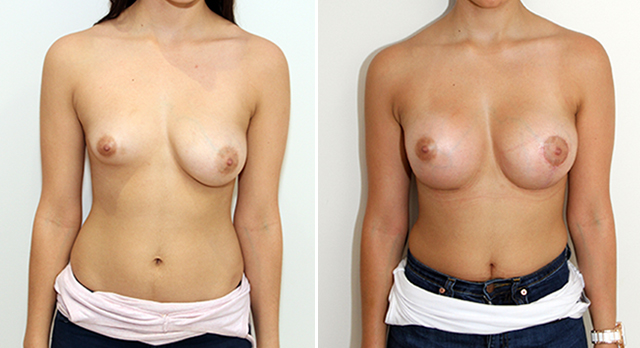 20s, asymmetry in breast size and shape corrected with 215cc anatomical implant on the left combined with lift surgery and 375cc anatomical on the right.