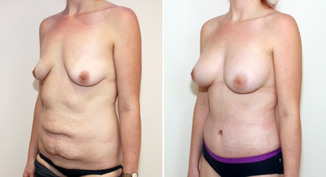 20s, tummy tuck used to tighten the muscles of the abdomen and remove excess skin post weight loss. A breast augmentation with 420g anatomical implants has also been performed.