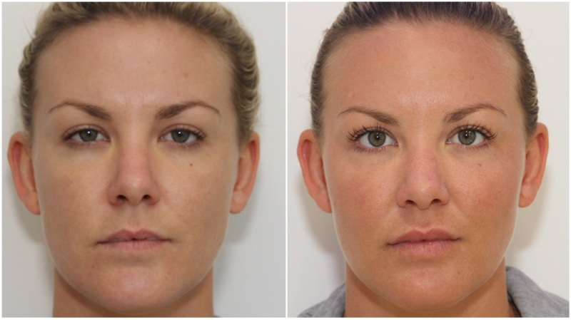 Cheek enhancement with volumising filler, hydrating filler used to soften under eye hollows and enhance lip projection. Anti-wrinkle injections used to lift the brow, and decrease wrinkling in the frown and crows-feet