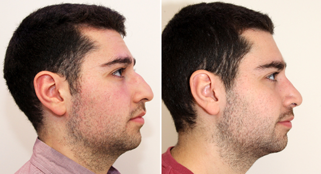 20s M, requested a smaller nose which matched his facial profile. Open rhinoseptoplasty to refine nasal dorsum, straighten septum, improve breathing and shape nasal tip.