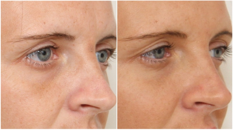 Hydrating filler used to soften under eye hollows