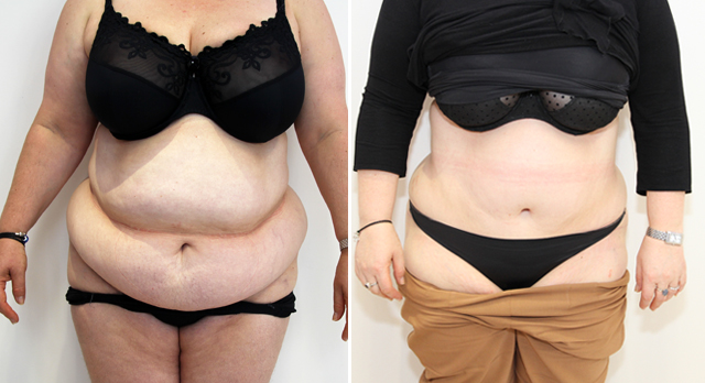 Extended tummy tuck to recontour the entire abdominal region.