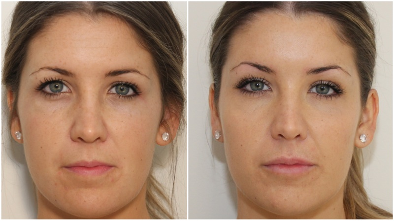Volumising dermal fillers used in the cheeks to enhance projection, hydrating dermal filler used to soften under eye hollowing and to enhance the lips. Anti-wrinkle injections used to the upper face to lift the brow and soften fine lines on the forehead and frown