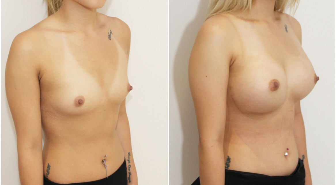 20s, breast augmentation with high profile, round style, dual plane positioned implants.