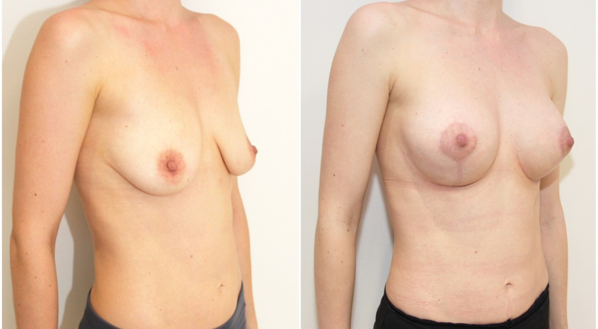 Breast lift/reshape + implants with 275g round style implants.
